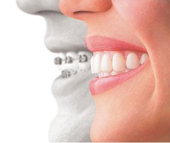 Invisalign Orthodontics Forney TX