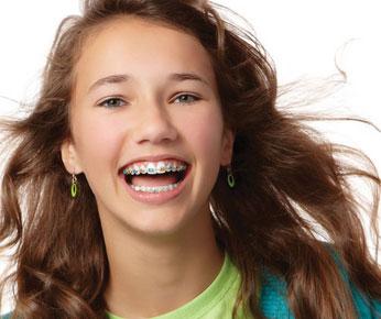 metal braces Orthodontics Forney TX